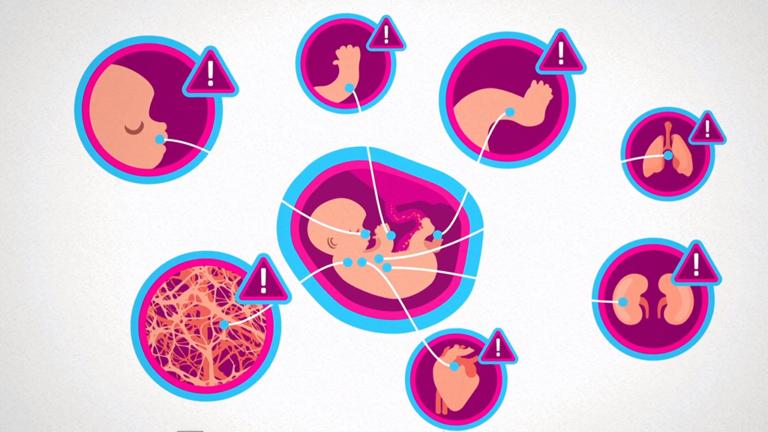Grafik aus dem Erklärvideo zur Wirkung von Alkohol in der Schwangerschaft